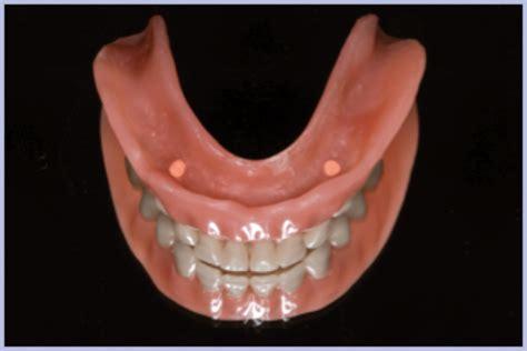 quanto costa una protesi dentaria mobile costo protesi mobili protesi dentaria mobile dott
