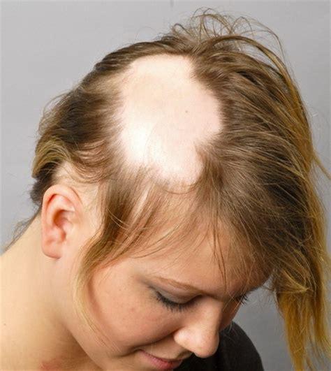 Green Mengatasi Masalah Rambut Rontok Parah mengatasi rambut rontok pasca melahirkan secara cepat
