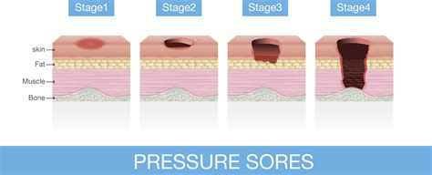 Bed Sore Stages by Decubitus Ulcer Stages Www Pixshark Images
