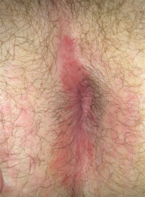 Anal sex hemorrhoids photo