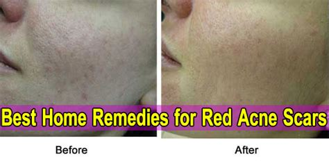 acne scars home remedies redness mask removal