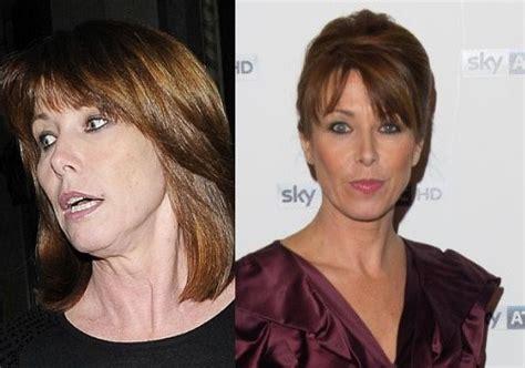 celebrity neck lift kay burley has car crash facelift celebrity plastic