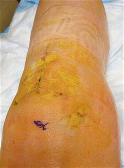 tattoo removal by plastic surgery real designs january 2010