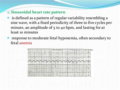 pattern heart rate intrapartum fetal heart rate assessment