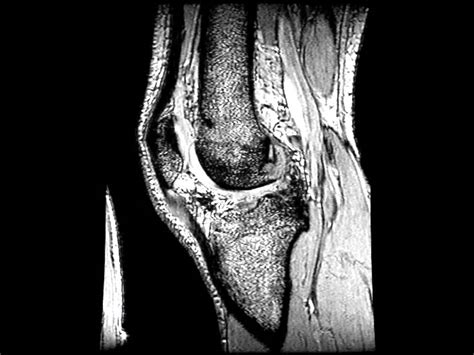 sana interno it resonancia de rotura de ligamento cruzado posterior lcp