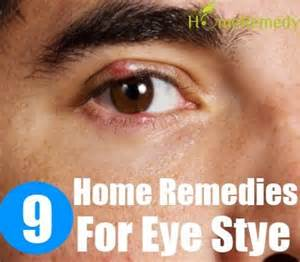 home remedies for stye home remedies for eye stye stye welcome to diaperch