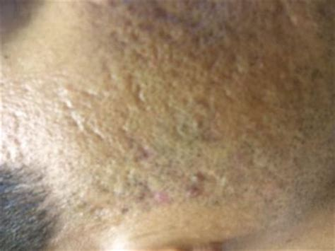 acne scar treatment  indian skin