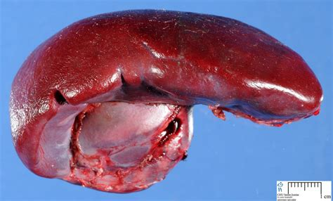 spleen tumor spleen humpath human pathology