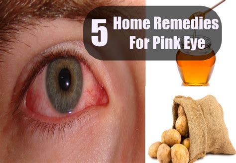 pink eye home remedy pink eye home remedies treatments and cure usa uk herbal supplements