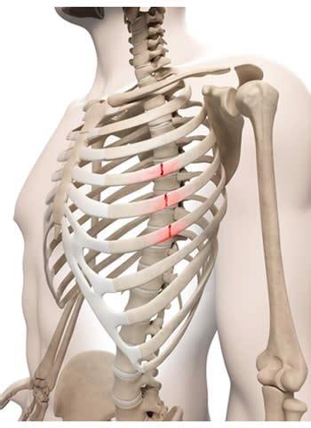dolore gabbia toracica posteriore frattura alle costole