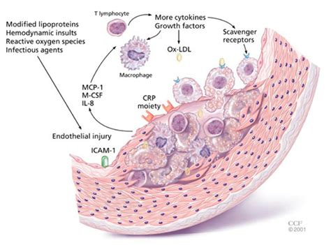 c protein high c reactive protein causes symptoms treatment c reactive