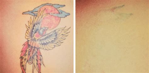 tattoo removal peterborough uk 28 laser removal uk laser