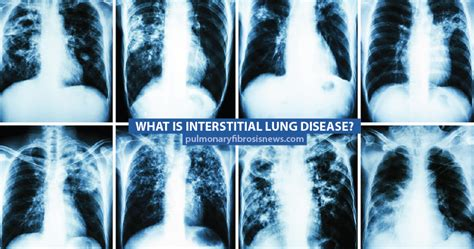 Oven Gas Lung what is interstitial lung disease pulmonary fibrosis news