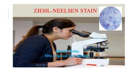 ziehl neelsen stain slideshare afb stain by manoj