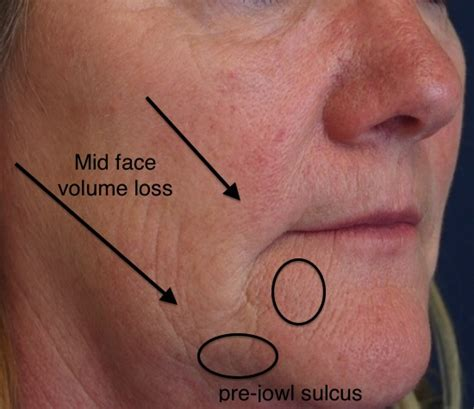 jowls and sagging around mouth treatment jowls and sagging around mouth botox in the lower face