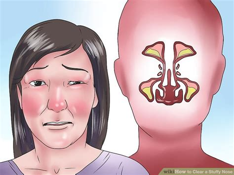 Did Get A Nose 2 by 4 Ways To Clear A Stuffy Nose Wikihow