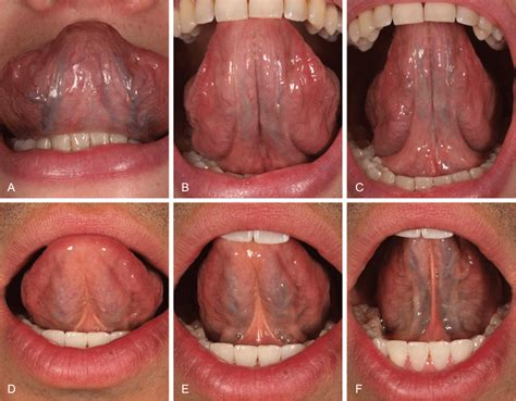 what color should your tongue be healthy underside of tongue gallery