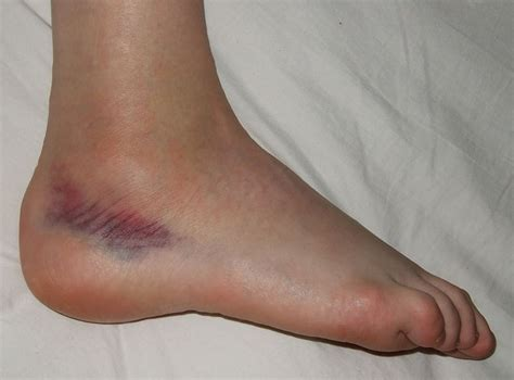 knie bluterguss innen fisioterapia esguince de tobillo lesiones