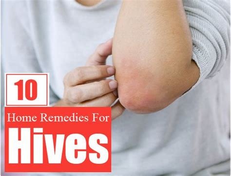 10 effective home remedies for hives home remedies