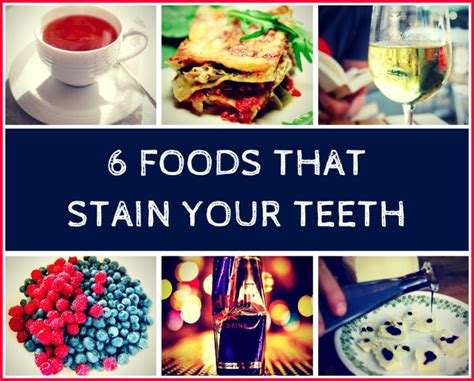 7 Foods To Avoid For Whiter Teeth by Foods You Can Eat While Whitening Teeth Foodfash Co