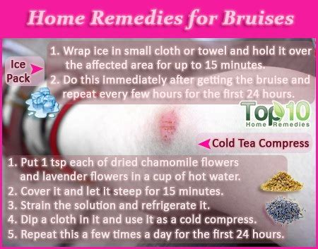 home remedies for bruises top 10 home remedies
