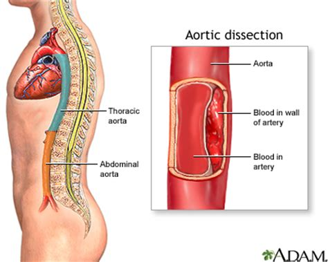 Dr Who Wall Mural aortic dissection uf health university of florida health