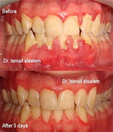periodontics gum treatment alsalem dental clinics
