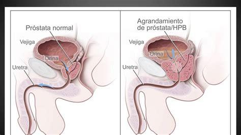 aparato reproductor masculino youtube enfermedades del sistema reproductor masculino youtube