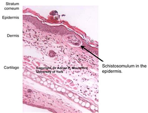 transverse section of skin schistoinir