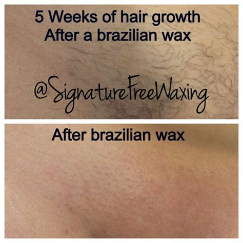 pubic hair before and after waxing top photos 5 weeks of hair growth after receiving a