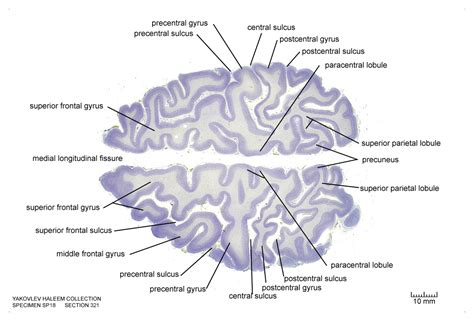 horizontal section of brain horizontal level 0320 as cell stain