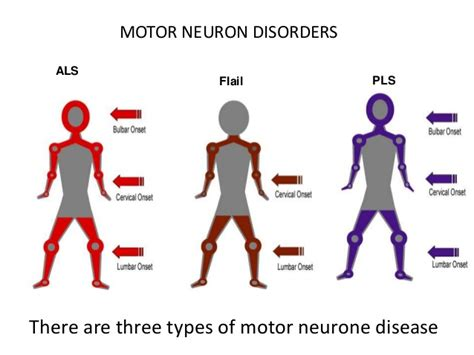 motor nerone disease what is motor neurone disease herbal care products