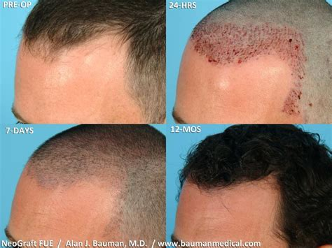 post hair transplant timeline picture 1 of 2 from neograft fue hair transplant healing