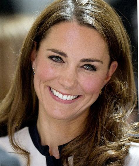 kate middleton wrinkles on forehead will hypertrophic scars fade vomit