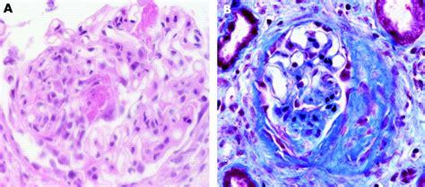 connettivite indifferenziata e alimentazione malattia tessuto connettivo mista