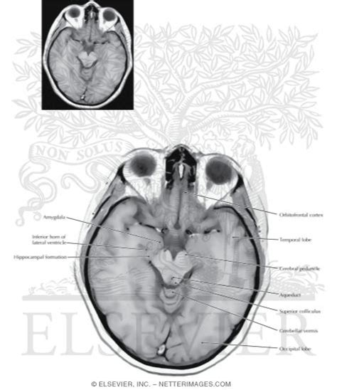 axial section axial horizontal sections through the forebrain level 3
