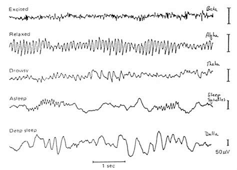 eeg pattern recognition quiz brain computer interface using single channel