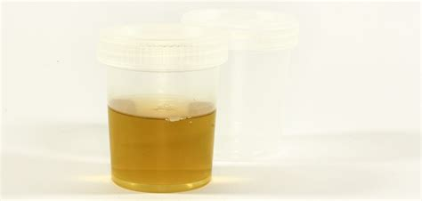brown colored urine urine what could be wrong with you if your is