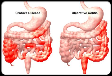 Passing Stool And Bleeding by Alternative Treatment For Ulcerative Colitis Top 4 Herbs