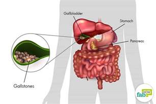 gallbladder location diagram how to get rid of gallstones without surgery fab how