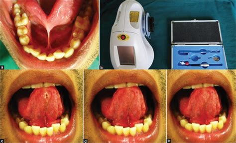 diode laser frenectomy management of ankyloglossia by diode laser suresh s sudhakar u merugu s kumar r j