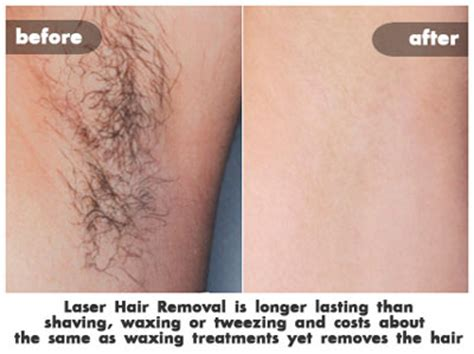 laser brazilian hair removal photos how much does brazilian laser hair removal cost triple