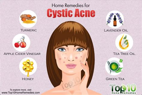 acne home remedies home remedies for cystic acne top 10 home remedies