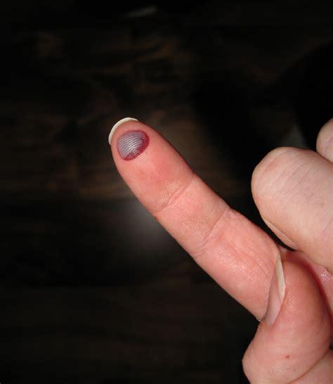 blood blister on infected blood blister on finger