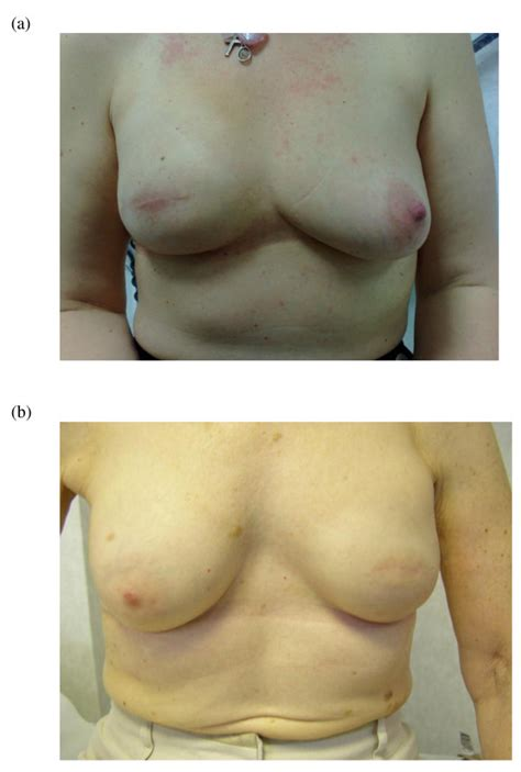 Breast Reconstruction Following Mastectomy | oncological outcome and patient satisfaction with skin