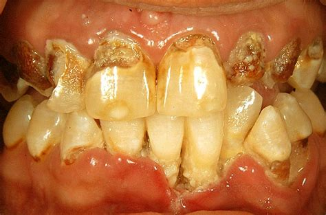 rotten teeth rotten teeth pictures symptoms causes treatment