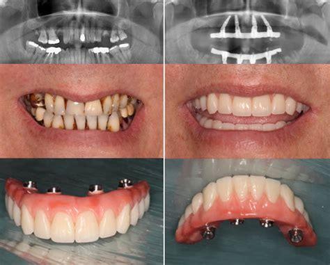 dental implants  orleans dental implants