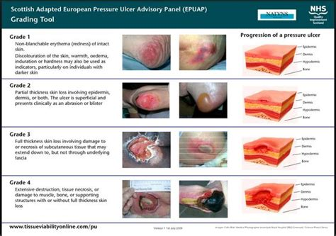 Wound Care Description by Scottish Adaption Of Epuap Guidelines For Pressure Injury Grading Wound And Ostomy Nursing