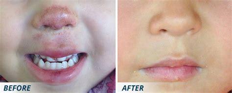 best c section scar treatment best scar treatment scar removal scarology by dermaflage