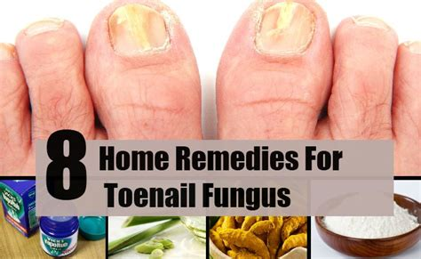 8 home remedies for toenail fungus treatments